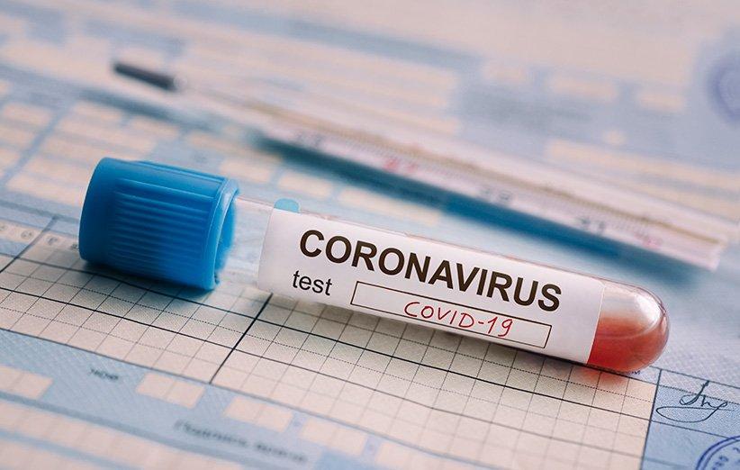 ضرورت پرهیز از بکارگیری تست های تشخیص سریع کرونا بدون تبادل داده با نظام بهداشتی